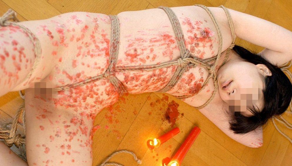 ハードSMの定番といえば「蝋燭プレイ」だよなwwwwwwwwwwなんか見てると痛々しいwwwwwwwwwwww(写真あり)